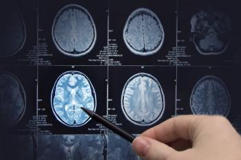 Radiasi Ponsel Tingkatkan Risiko Kanker Otak?