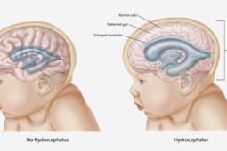 Bukan Cuma Bayi, Lansia Juga Bisa Idap Hidrosefalus