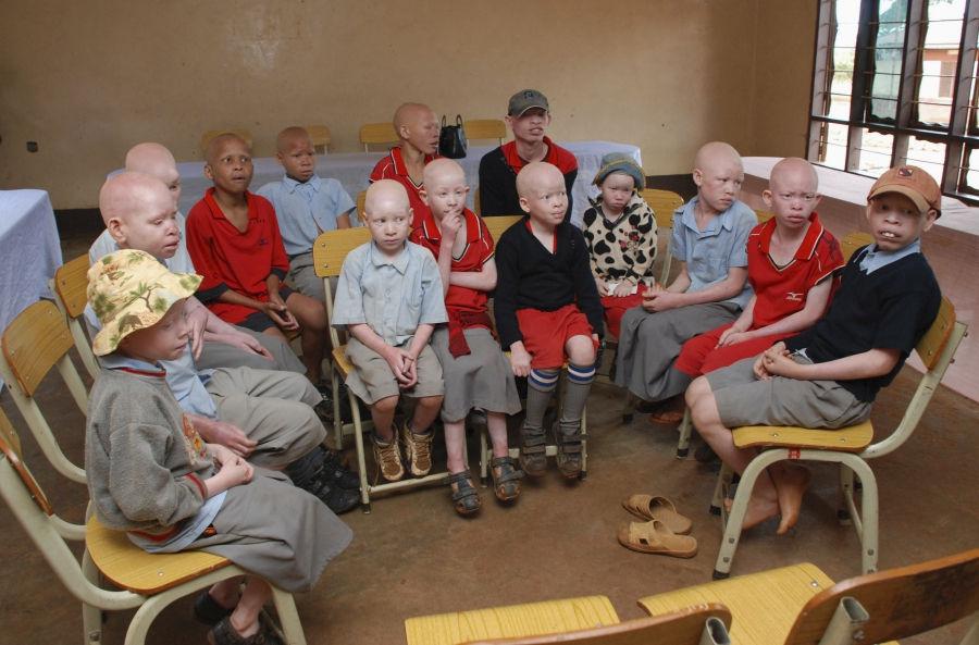 orang albino di Afrika