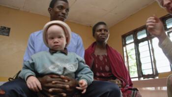 Kisah Pilu Orang Albino di Afrika, Diburu Demi Kekuatan Magis