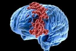 Mengenal Kanker Paling Agresif, Giloblastoma
