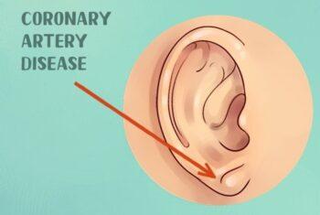 9 Kondisi Kesehatan Ini Dapat Ditunjukkan Melalui Telinga