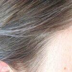 Rambut Beruban di Usia Masih Muda? Ini Cara Pencegahannya