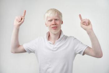 Mengenal Penyebab Albino dan Jenis-Jenisnya