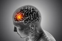 Apakah Pendarahan Otak Bisa Sembuh?