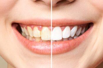Begini Cara Membersihkan Gigi Kuning, Supaya Gigi Tetap Putih dan Sehat